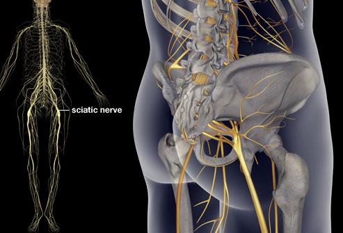 sciatica-myotherapy-tension-release